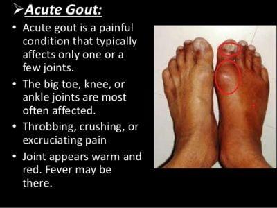 acute gout symptoms