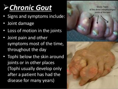 chronic gout symptoms