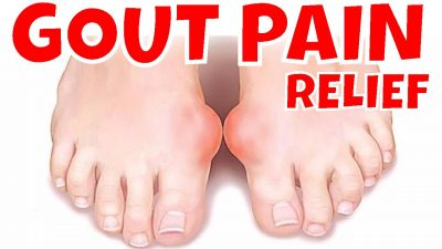 homeopathy for gout